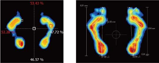 足圧分析の比較画像