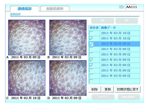 簡易型肌診断装置 スキンプラス 結果画面