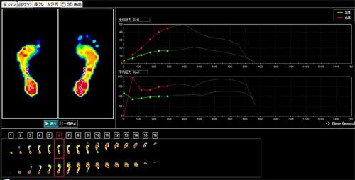 歩行測定フレーム分析画面